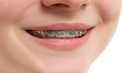 Beaudesert Orthodontics