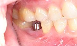 Dental Implants Beaudesert