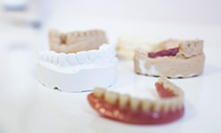 Dentures Full Immediate Partial