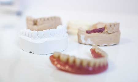 Dentures Full Partial Immediate