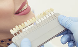Teeth Whitening Beaudesert